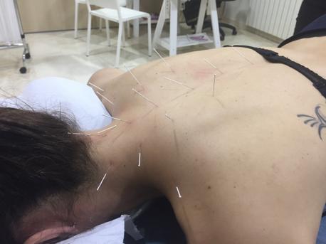 Acupuntura en Malaga tratamiento para latigazo cervical