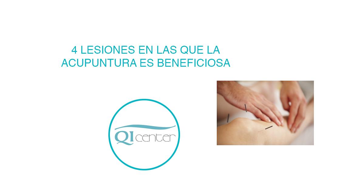 Cabecera-acupuntura-Malaga-Lesiones