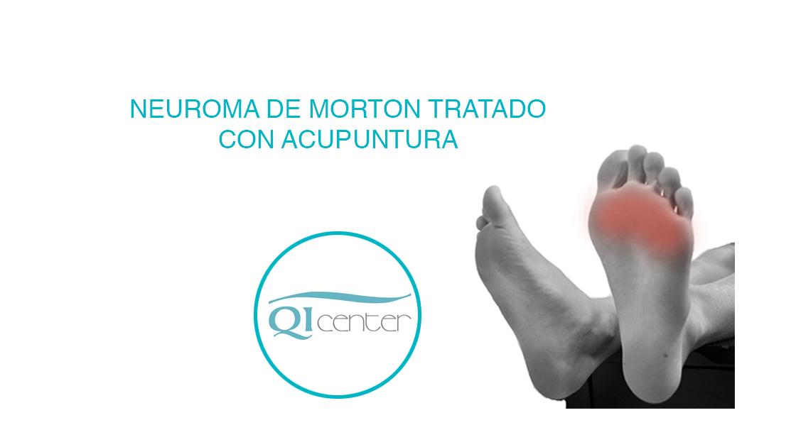 acupuntura malaga cabecera neuroma de morton