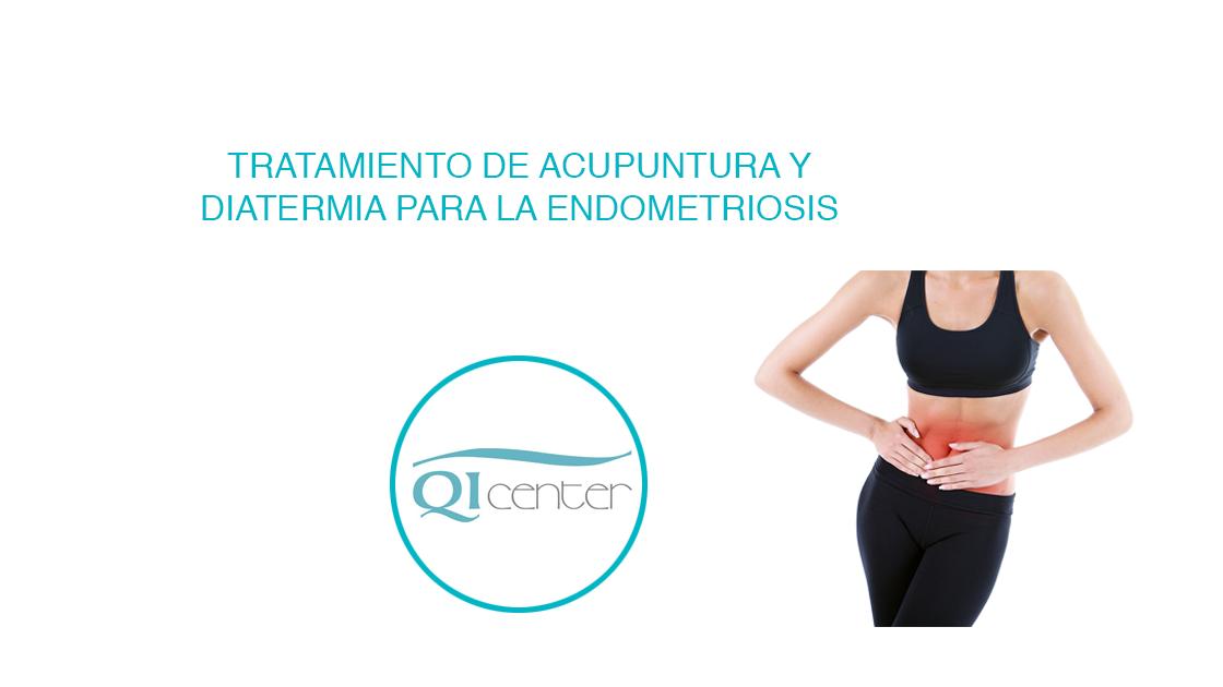 Cabecera tratamiento acupuntura para la endometriosis en Malaga