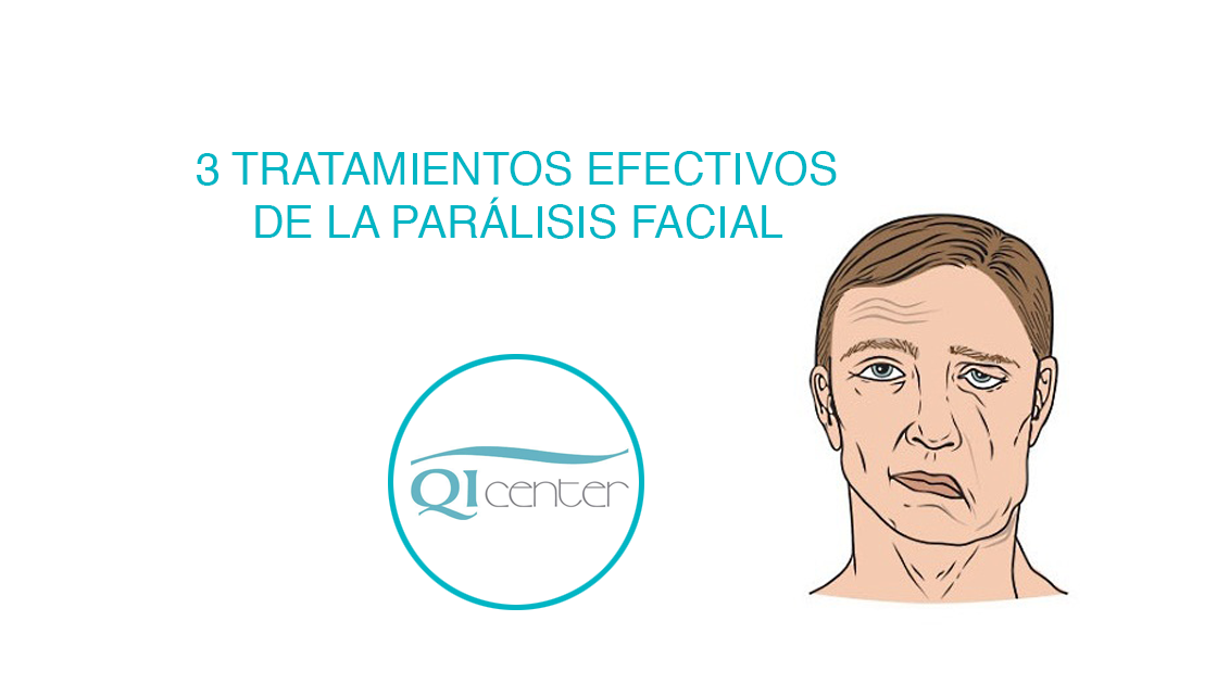Tratamiento paralisis facial fisioterapia en malaga