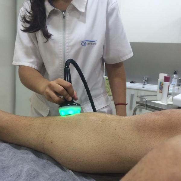 Periostitis corredor fisioterapeuta Malaga