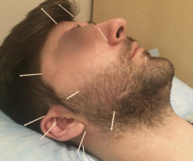 neuroacupuntura paralisis facial acupuntura en Málaga